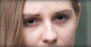 yeux-cernes