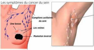 Deodorant-sels-alluminium-cancer-du-sein-