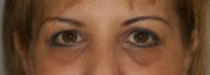 yeux-cernes-creuses