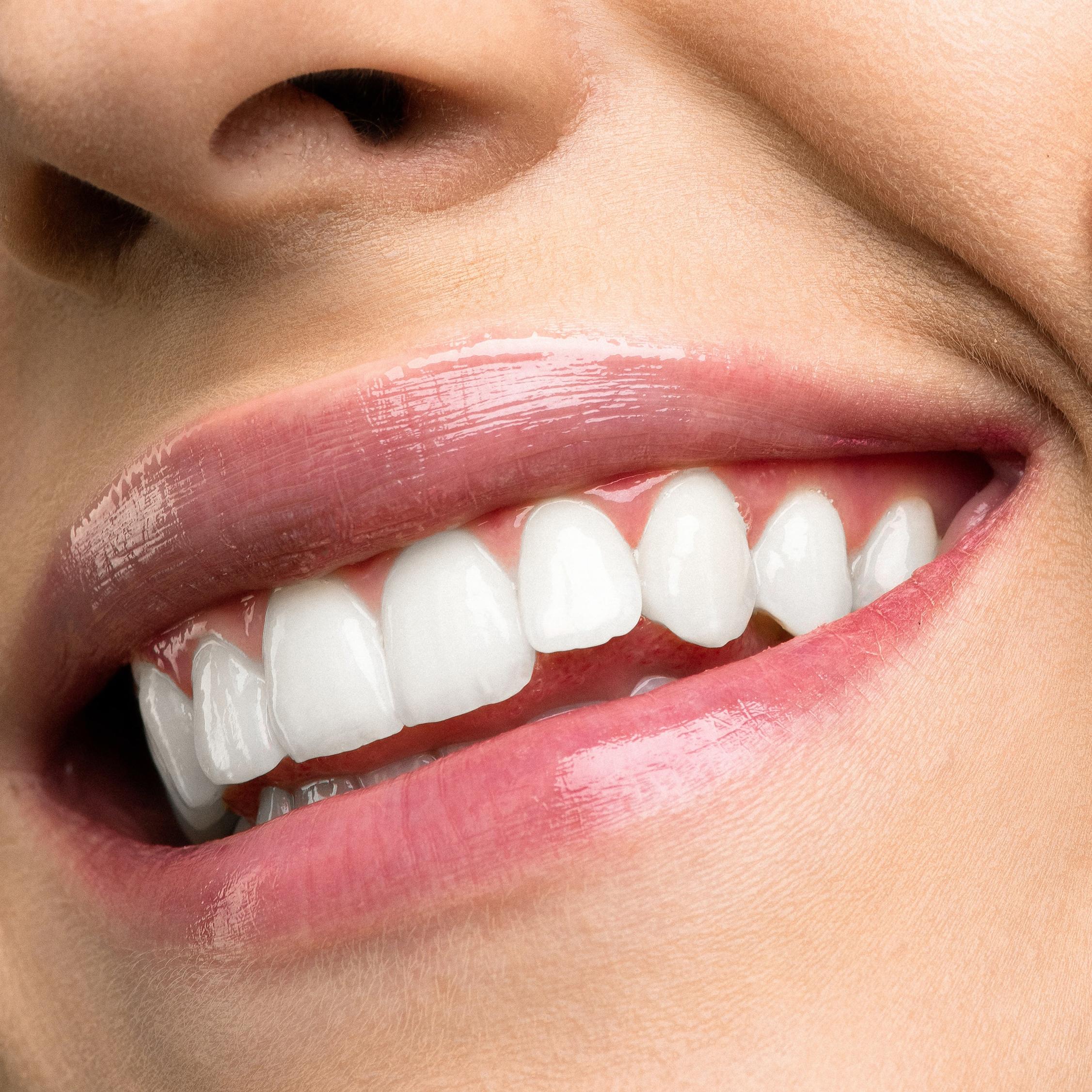 sourire-levre-bouche